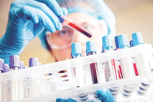 Sau khi hiến máu bao lâu thì có kết quả xét nghiệm?