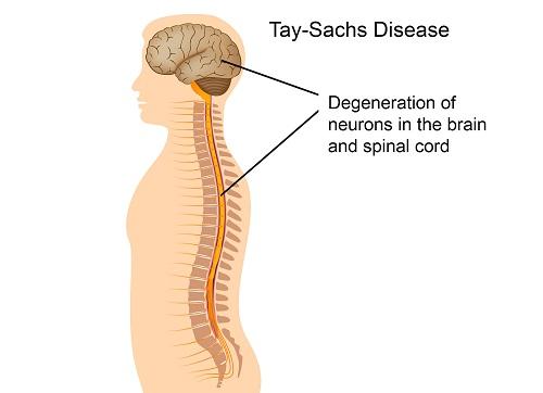 Bệnh Tay-Sachs