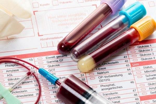 Tìm hiểu ý nghĩa của các chỉ số xét nghiệm sinh hóa máu